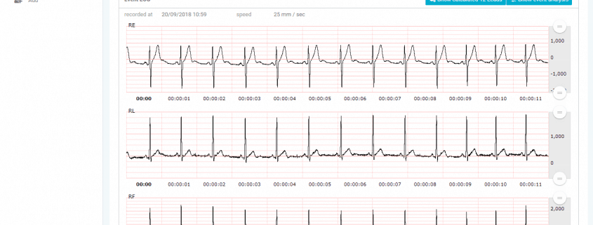 Relf - Medical cloud based software displaying ECGs online, based on app gathered data